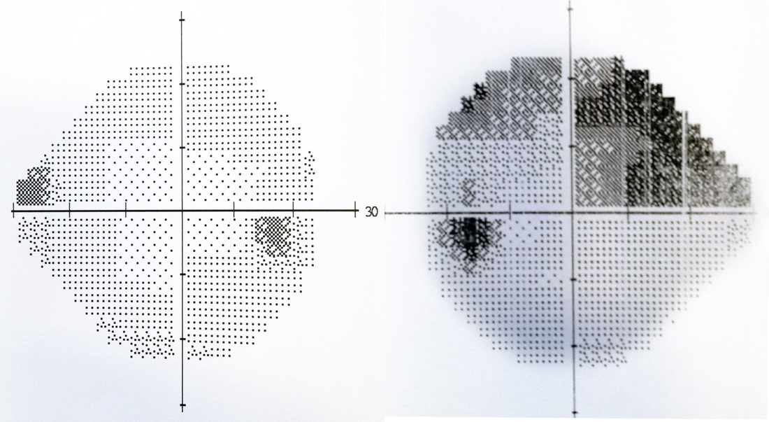 The image on the left above is that of a full visual field plot (normal). The greyscales represent how bright the stimulus has to be for the subject to see it (white meaning the light is very dim ie good eye sensitivity and black meaning the eye cannot detect light in that area). The grey/black dot on the right is the natural blind spot of the eye and the sensitivity of the eye naturally diminishes further out from the centre (the grey gets greyer peripherally) The image above and on the right is that of a typical Glaucoma field plot where the eye has lost sensitivity above the mid line of the line of sight. Again the black dot on the left is the eyes natural blind spot but the dark areas above and to the right are parts of the retina that cannot signal to the brain their messages due to optic nerve loss or damage.