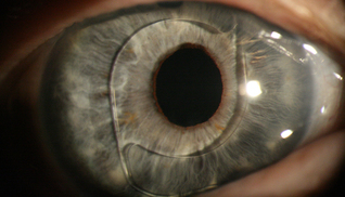 This image is that of an IOL implant lens that has been placed before the iris and pupil. This will have been done for a specific reason during the operation whereby the surgeon felt that placing the lens behind the eye would not have been successful or would cause further complications. It serves to illustrate the shape and size of the modern implants used in these operations.